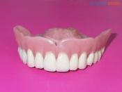 Некоторые назаровцы могут бесплатно поставить зубные протезы