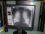 В городе Назарово в туберкулезном отделении мужчина отказался есть и умер