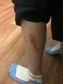 В городе Назарово собаки напали на детей, возвращающихся с тренировки по футболу