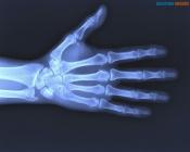 Ачинские травматологи принимают необследованных назаровцев